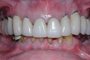 Dental Implant before treatment