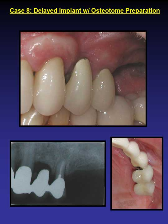 before-and-after-photos-Delayed-Implant
