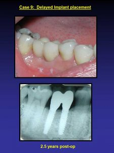 Delayed Implant Placement