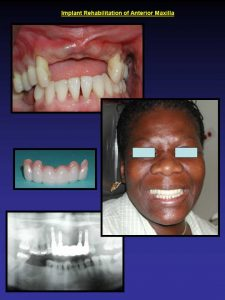 before-and-after-photos-dental-implant