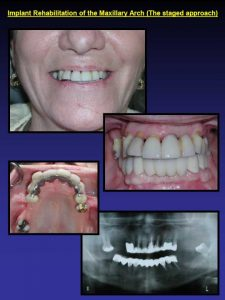Dental Implants photos