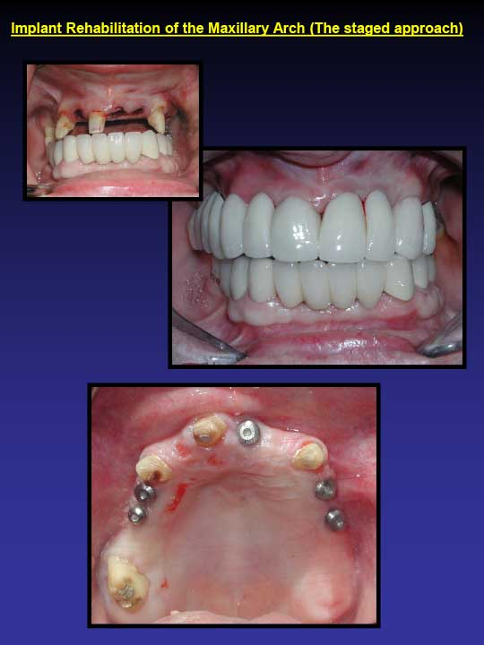 Implant Rehabilitation before and after images