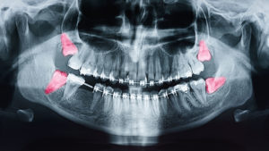 When Do I Need to Have My Wisdom Teeth Removed?