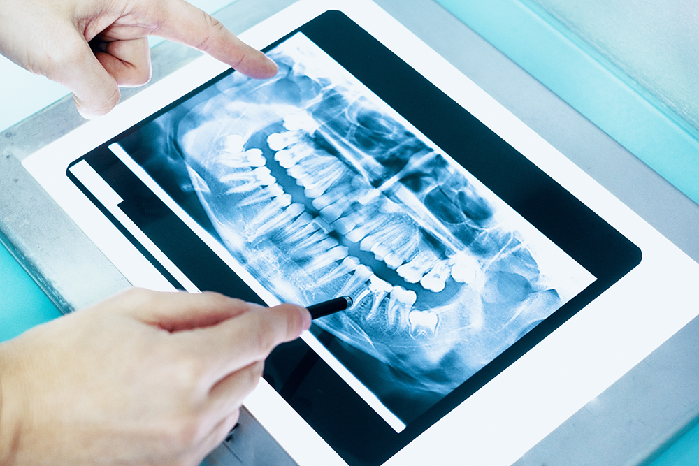 How Often Do I Need To Have X-Rays Taken and How Safe Are They?