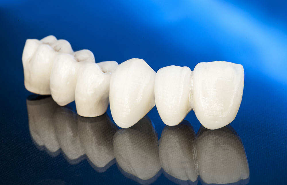 What Is a Ceramic Crown?